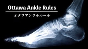 ottawa-ankle-rule