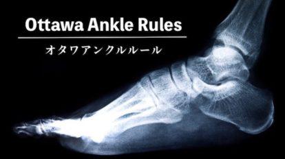 ottawa-ankle-rule