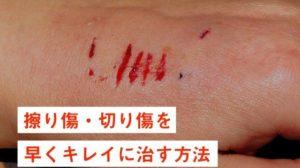 moist-wound-healing
