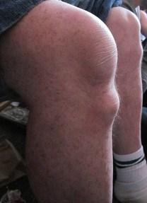 osgood-knees