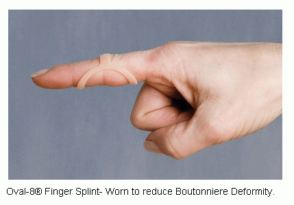 finger-splint