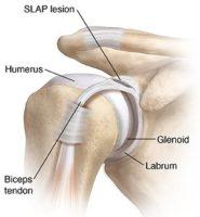 slap-lesion-anatomy